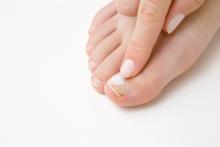 Препараты от грибка ногтей