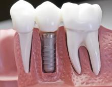 Имплантация и протезирование: современные методы