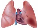 Тромбоэмболия легочной артерии