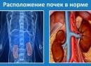 Опущение почки Симптомы, причины и последствия