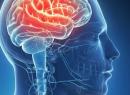 Симптомы и виды эпилепсии. Как оставить болезни в прошлом?