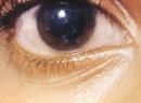 Бельмо - это помутнение роговицы глаза. Причины и лечение