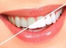 Ламинирование зубов: описание процедуры, отзывы