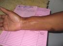 Синовиальная саркома (злокачественная синовиома): причины, симптомы, методы лечения