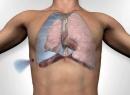 Описание пневмоторакса: виды заболевания, причины, диагностика и лечение