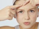 Проблема кожи - появления акне