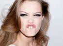 Как убрать щель между передними зубами и стоит ли это делать? - гигиена и эстетика, диастема, методы устранения, щель между зубами