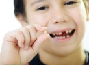 Как вырвать молочный либо коренной зуб в домашних условиях - интересное, удаление, домашние условия, коренной зуб, молочный зуб