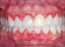 Катаральный гингивит - лечение, катаральный гингивит, кровоточивость десен, лечение, симптомы