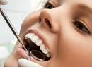 Лечение пульпита зуба - лечение, кариес, лечение, пульпит зуба