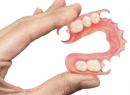 Преимущества и недостатки бюгельных зубных протезов - протезы и импланты, бюгельные протезы, недостатки, преимущества, протезирование