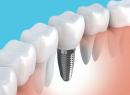 Симптомы отторжения зубных имплантов